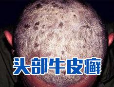 头部牛皮癣患者如何头部护理